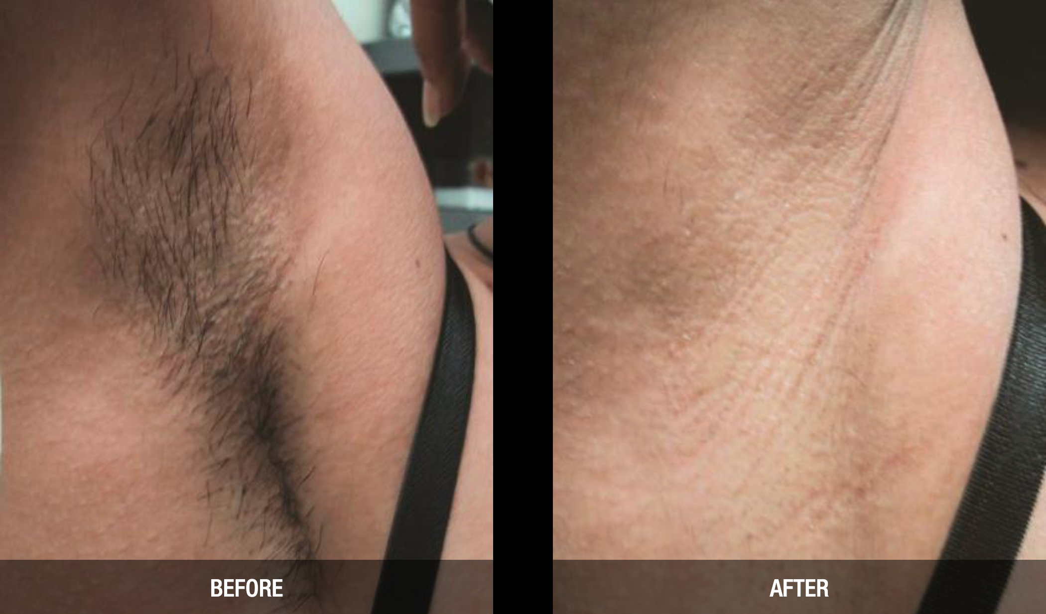 Laser hair removal with the GentleMax Pro.